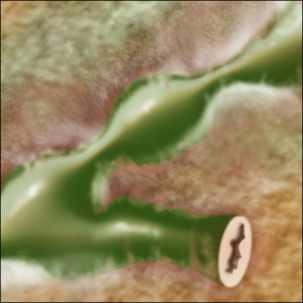 primary sclerosing cholangitis illustration