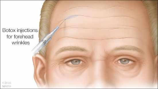 Ilustración médica de las inyecciones de bótox para las arrugas en la frente