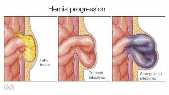 Ilustración médica del avance de una hernia