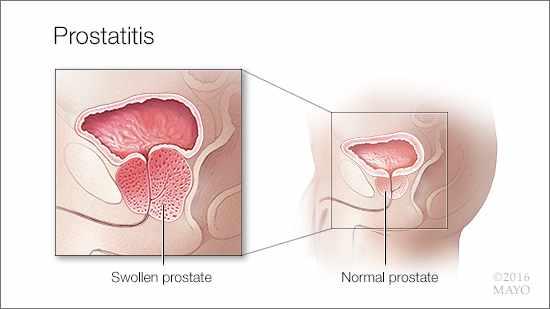 Ilustración médica de la prostatitis: una próstata hinchada (izquierda) y una próstata normal (derecha)