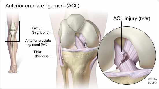 a medical illustration of the anterior cruciate ligament (ACL) and an ACL injury