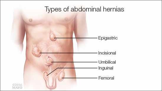 Ilustración médica de los tipos de hernias abdominales