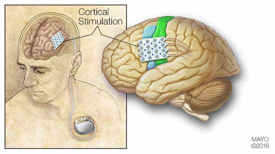 Ilustración médica de la estimulación cortical