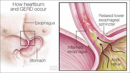 Ilustración médica de la acidez estomacal o ERGE