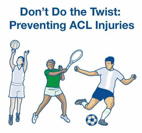 infographic for preventing ACL injuries