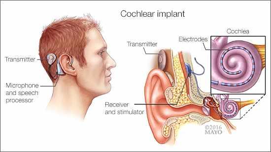 Ilustración médica de un implante coclear