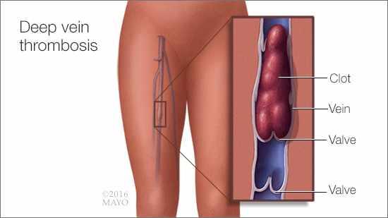 Ilustración médica de la trombosis venosa profunda