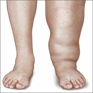 a medical illustration of lymphedema in the leg