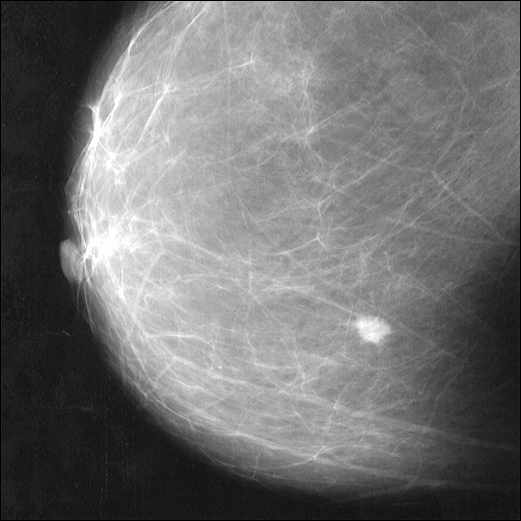 a radiologic image of breast cancer