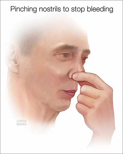 medical illustration of a man pinching his nose to stop a nosebleed
