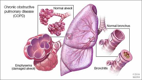 a medical illustration of Chronic obstructive pulmonary disease COPD