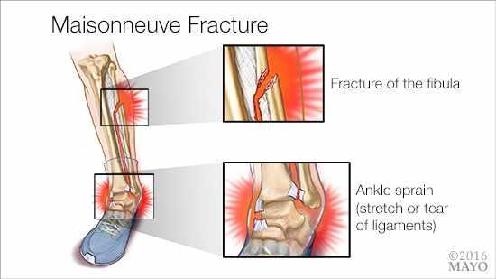 Ilustración médica de la fractura de Maisonneuve