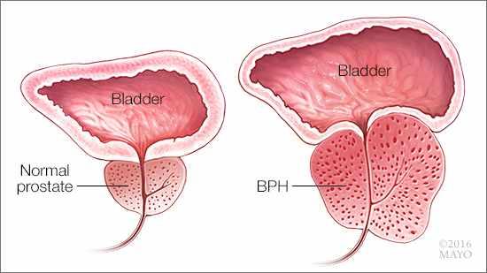 Ilustración médica de una próstata normal y de otra con hipertrofia benigna de próstata