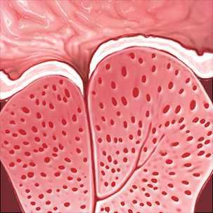 a medical illustration of benign prostatic hypertrophy