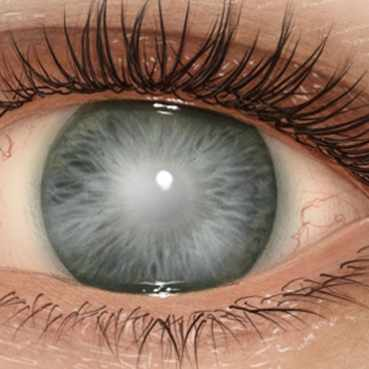 medical illustration of the cornea in the eye with clouding