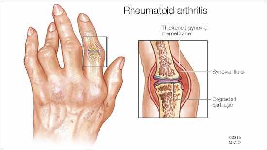 rheumatoid arthritis illustration