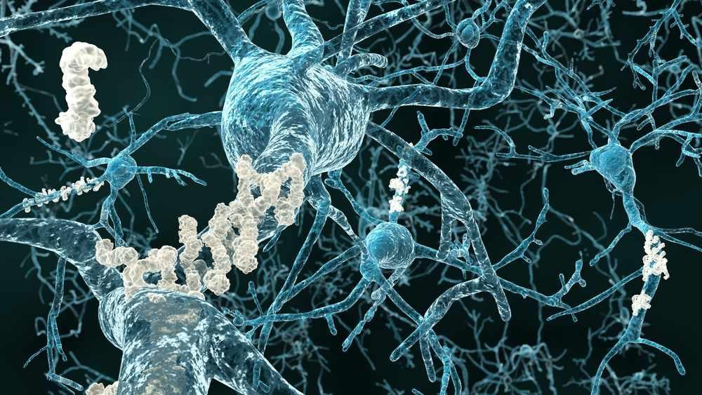 Ilustración médica de las placas amiloides en la enfermedad de Alzheimer