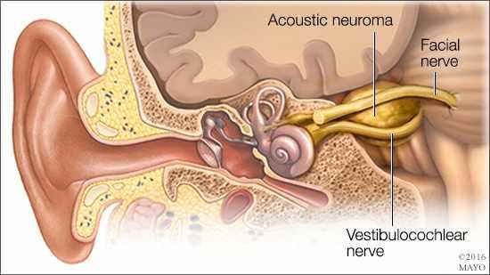 Ilustración médica de un neuroma acústico