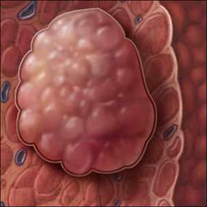 a medical illustration of hepatocellular carcinoma