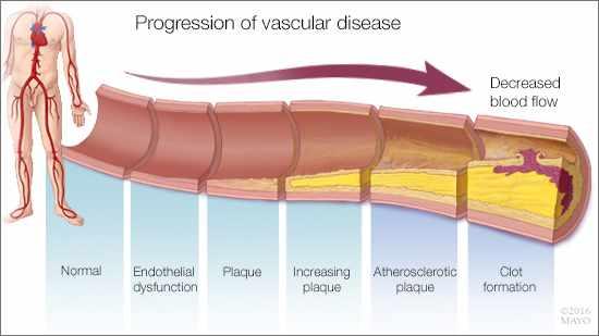 Ilustración médica del avance de la enfermedad vascular