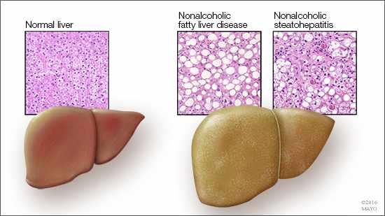 Ilustración médica de un hígado normal y de otro graso
