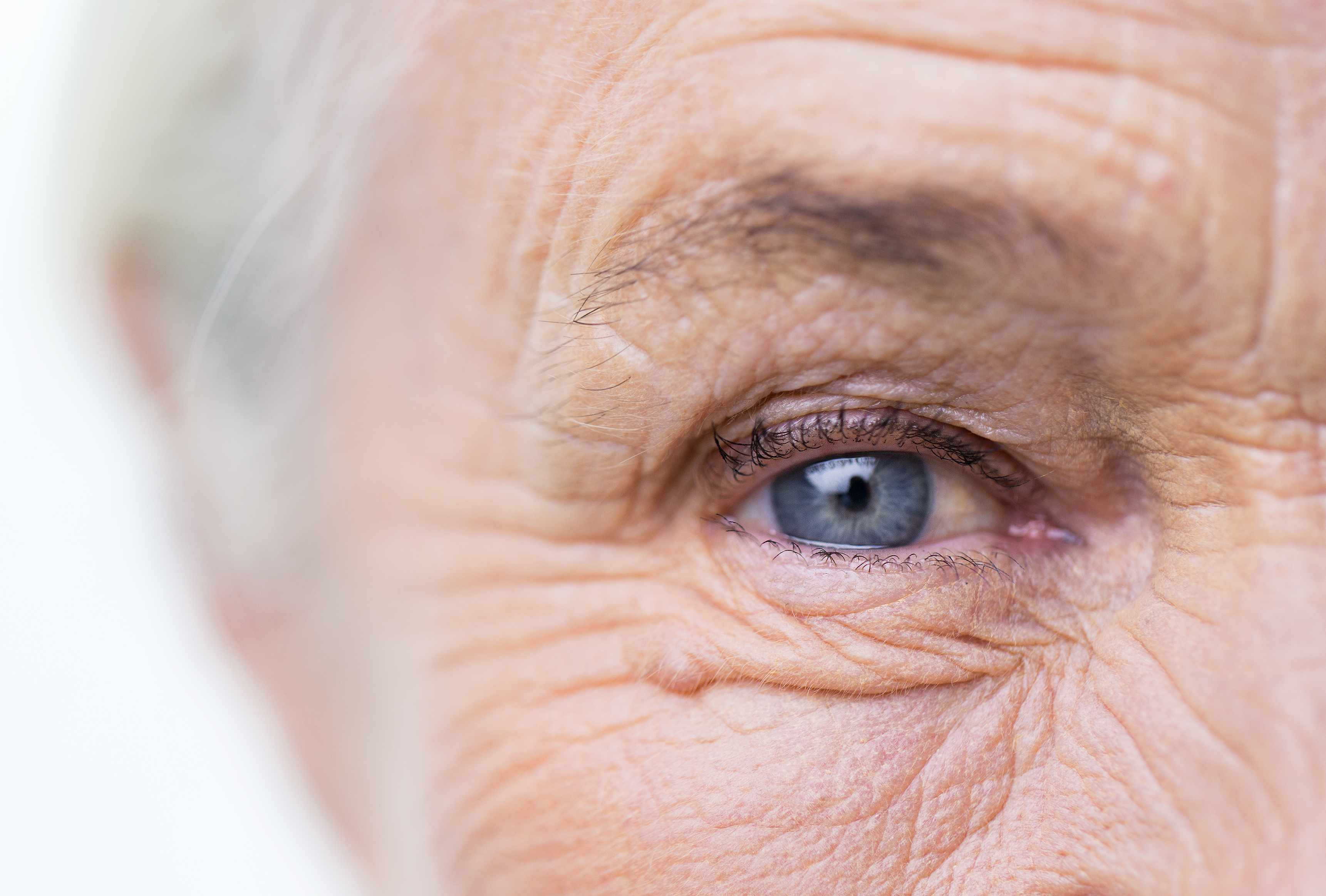 a close-up of an elderly woman's right eye