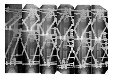 x-ray of Jessica Nelson's leg transport