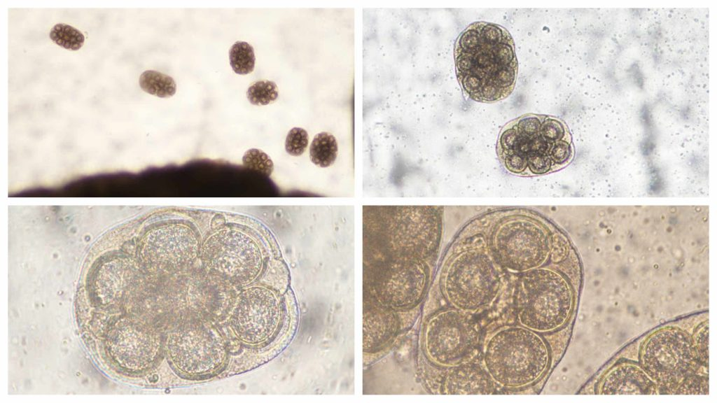 a collage of images of unidentified parasites from the Parasite Wonders blog