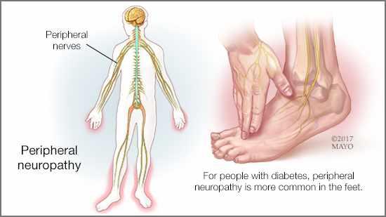 Ilustración médica de los nervios periféricos en el cuerpo y de la neuropatía periférica en un pie