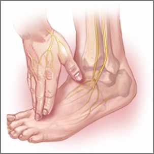 a medical illustration of peripheral neuropathy