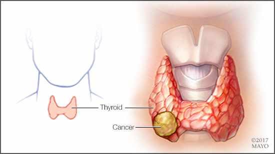 a medical illustration of thyroid cancer