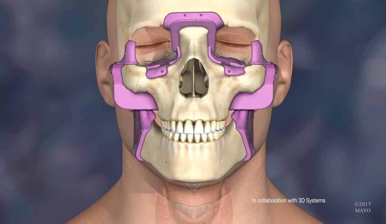 Medical illustration of face transplant