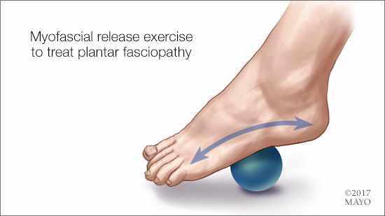 Ilustración médica de un pie rodando sobre una pequeña pelota como ejercicio miofascial para tratar la fasciopatía platar