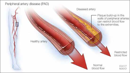 a medical illustration of a healthy artery and one with peripheral artery disease