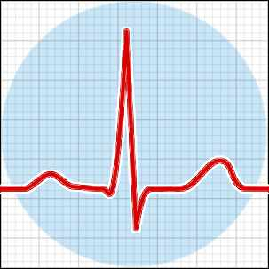 a medical illustration of an electrocardiogram reading