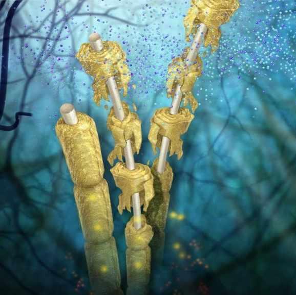 Medical illustration of nerve damage caused by multiple sclerosis