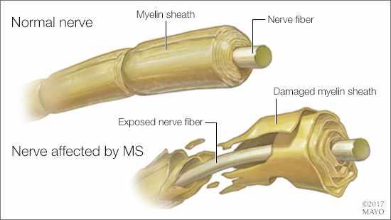 Ilustración médica de un nervio normal y de otro afectado por EM