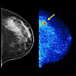 a medical illustration of molecular breast imaging (MBI) images
