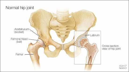 Ilustración médica de la anatomía de una articulación normal de la cadera