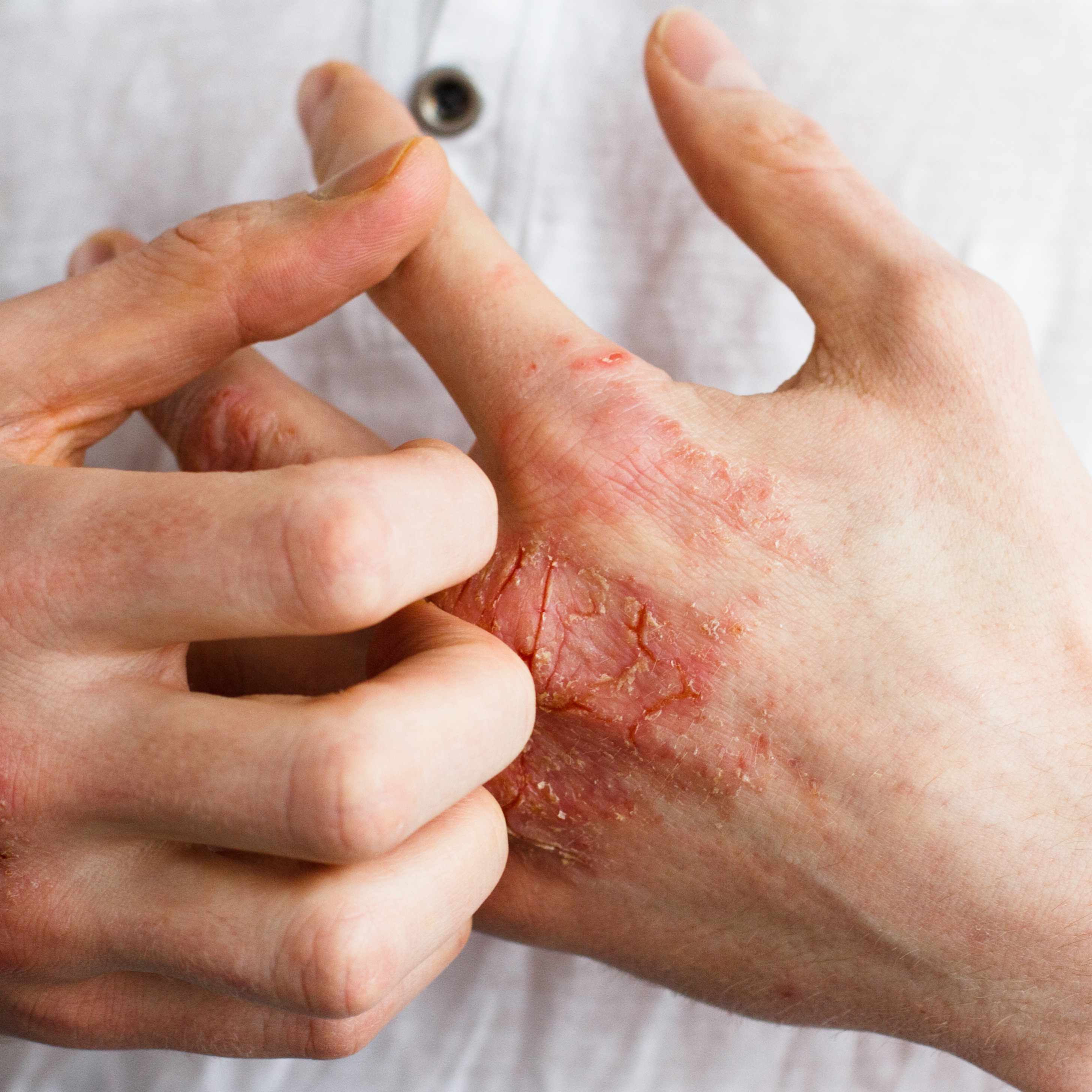a person with eczema scratching the itchy skin