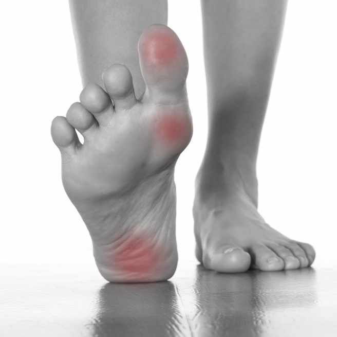 A pair of feet, bottom of foot showing red spots indicating pain