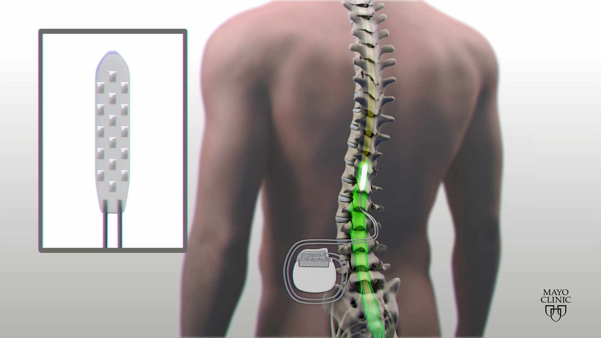 Graphic of spine surgery procedure