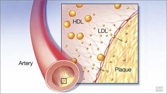 Ilustración médica de una placa de colesterol dentro de una arteria