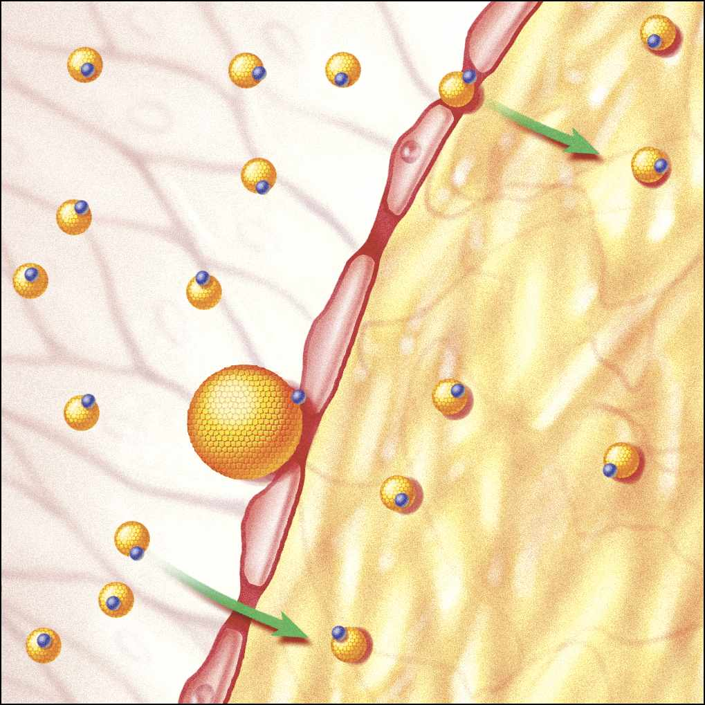a medical illustration of cholesterol plaque in an artery