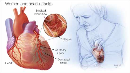a medical illustration of women and heart attacks