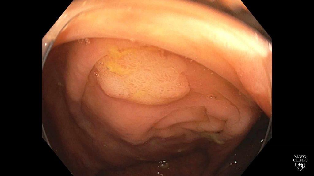 colonoscopy scope camera view of the colon and polyp