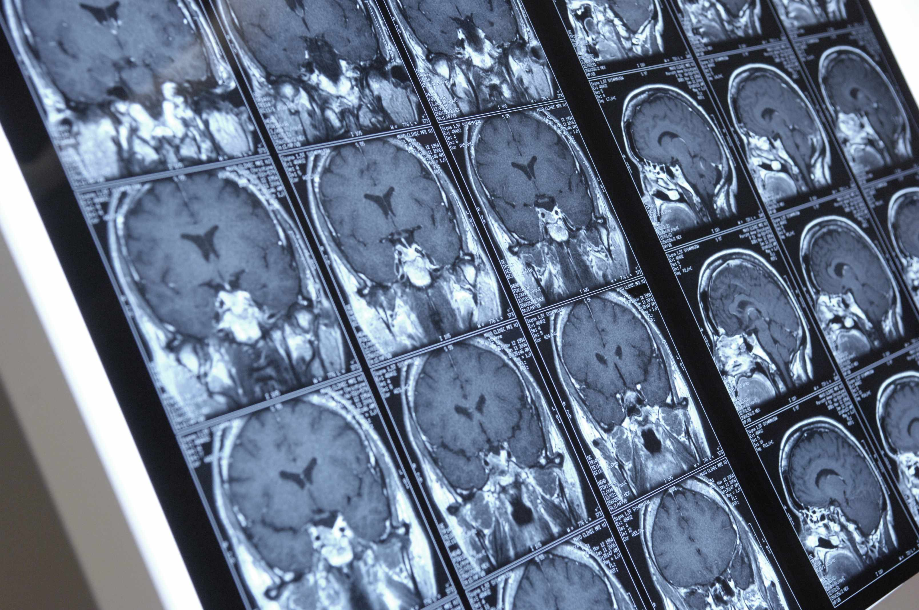 image of a brain MRE