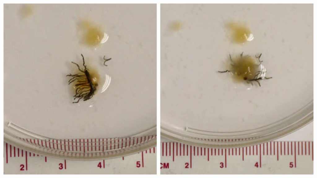 a collage of images of an unidentified parasite from the Parasite Wonders blog