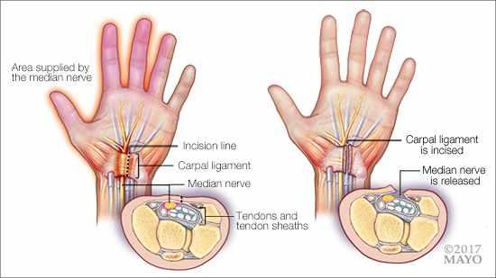 Ilustración médica de la cirugía para el túnel carpiano