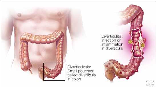 Ilustración médica de la diverticulosis y la diverticulitis